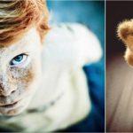 Клинический случай: причина заикания у ребенка