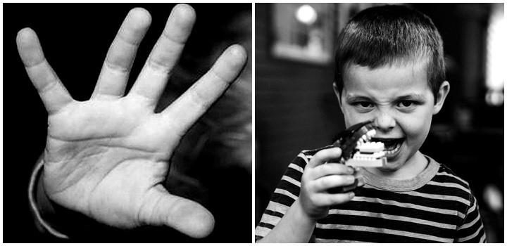 фото Что делать если ребенок дерется
